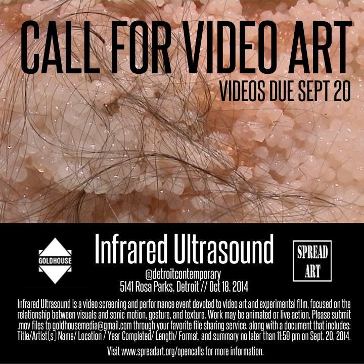 Infrared Ultrasound-new